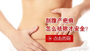 孕妇有妊娠疤痕怎么去除