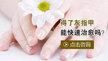 如何有效预防灰指甲的产生