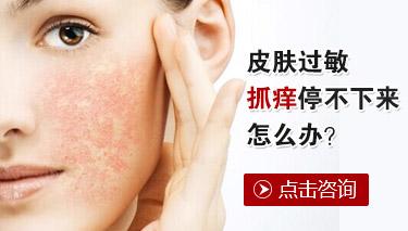 哪些疾病特别容易引起皮肤过敏
