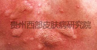 血管炎.jpg