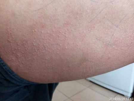 小孩荨麻疹怎么治疗