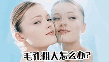 鼻子毛孔粗大的解决方法